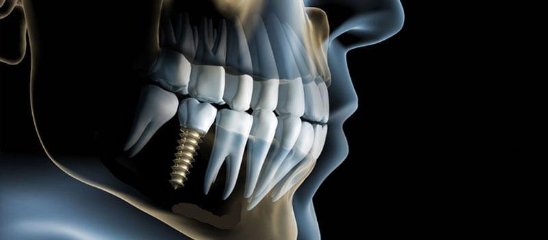 Implantate, Implantologie - Zahnarzt Praxis Papczyk in Gera