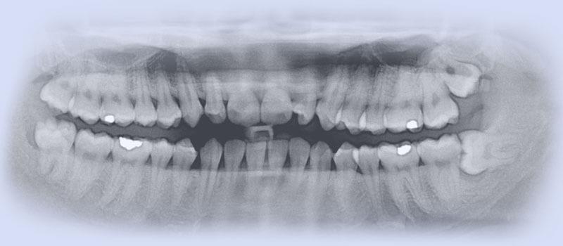 Oralchirurgie Mundhöhle - Zahnarzt Praxis Papczyk in Gera